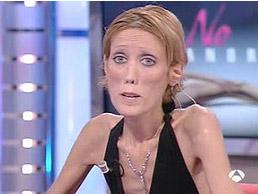 Isabelle Caro biografía vida anorexia