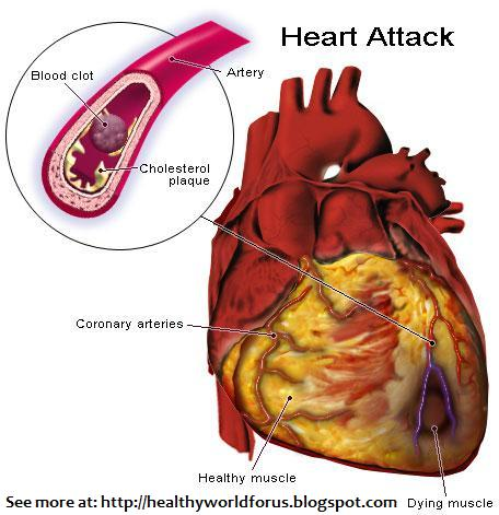 female heart attack symptoms. house Heart Attack Symptoms