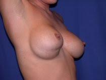 Breast Revision Newport Beach, Breast Revision Orange