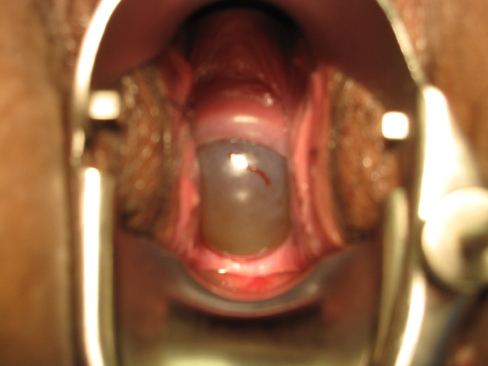 When the Cervix opens prematurely, take a look!