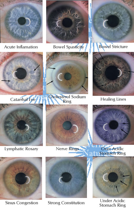 Types Of Eye Irises | biometrics iris, complementary ...