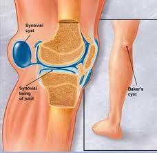 [Image: persendian+lutut.jpeg]