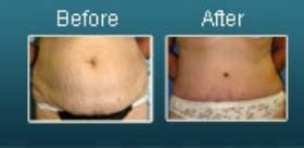 Beverly Hills tummy tuck
