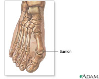Fitting Hiking Boots for Bunions and Other Wide Foot Issues - AMC ...