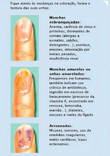 Fungo em respostas de remédios de dedos do pé
