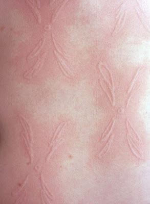 Skin art (11) 4