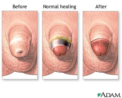 circumcision aftercare picture Re: Adult circumcision