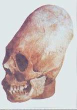 Cráneo de los egipcios Shemsu Hor