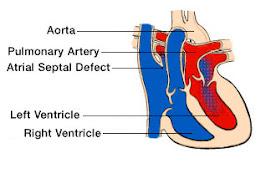 TGA Heart