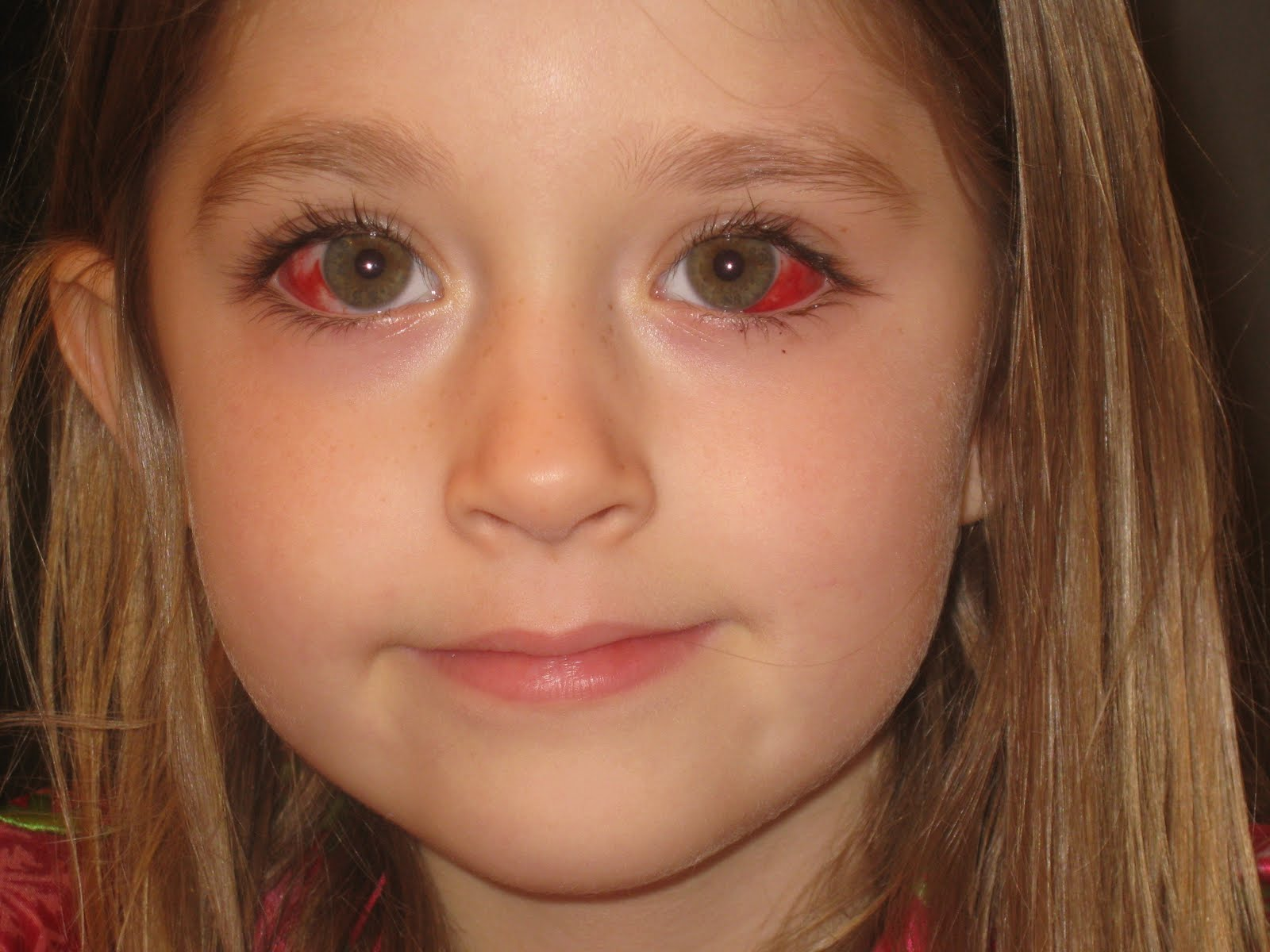Why does strabismus appear in adults and how to be treated (from surgery to traditional methods)