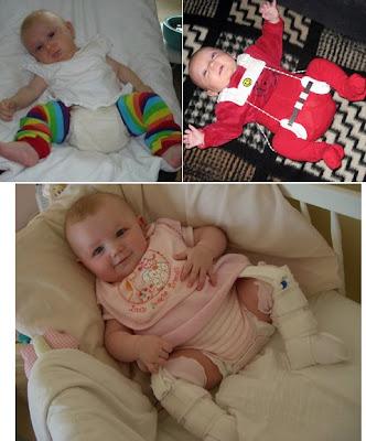 Ο παιδίατρος μπορεί να συστήσει να φοράει το μωρό διπλή πάνα προκειμένου να μένουν τα πόδια ανοιχτά.