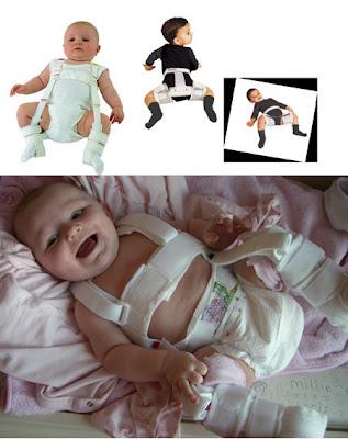 Θεραπεία με κηδεμόνα σε μωρά με δυσπλασία ισχίων