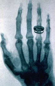 صور الأحداث التاريخية التي تغير العالم 180px-Roentgen-x-ray-von-kollikers-hand