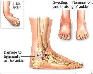 Sprained Ankle Treatments, Sprained Ankle Cures, Sprained Ankle Home Remedies