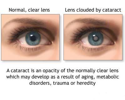 The term cataracts refer to a clouding of the eye's lens that is located
