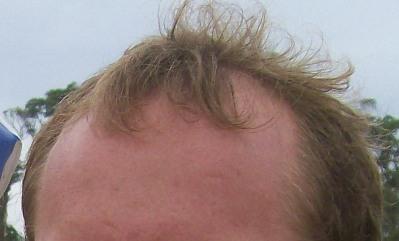 La alopecia a los hombres como devolver los cabellos