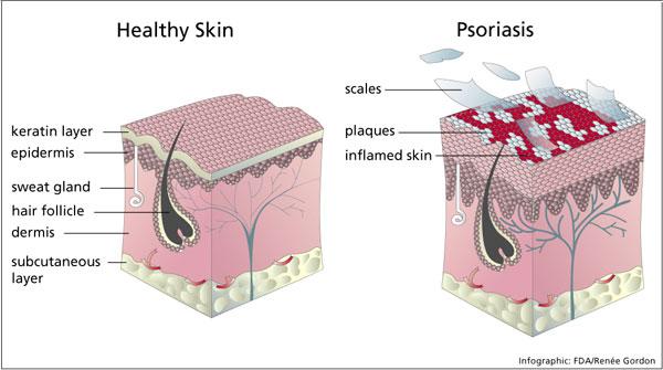 El foro de que se han curado de la psoriasis