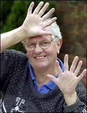 Pria Yang Memiliki 6 Jari Di Kedua Tangannya
