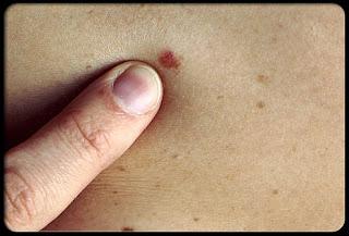 cancerous uterine fibroids