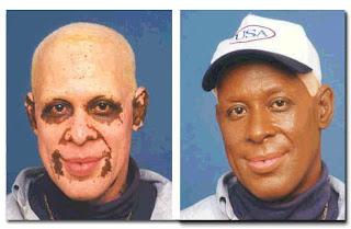 Esau White And Jacob Black