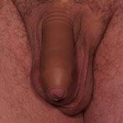 Regaining feeling in a circumsized penis