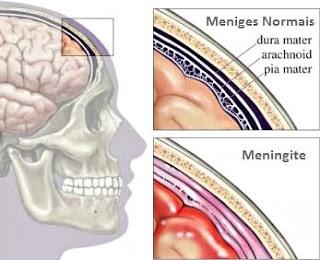 vacina meningite
