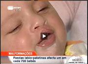 Reportagem RTP - Fendas labio-palatinas