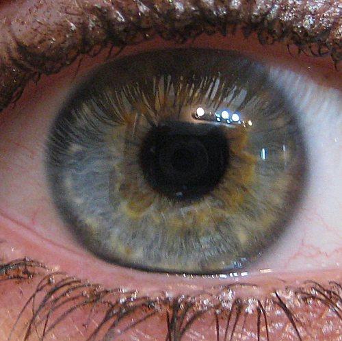how to get heterochromia iridum naturally