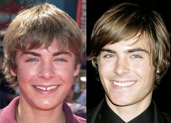 Before & After: Celebrity Teeth. metrotechdentalcare.com ...