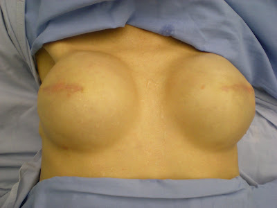 Expanders breast cancer painful