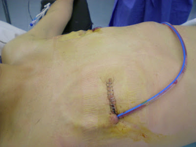 Angelina Jolie Breast Reconstruction; Mastectomy ...