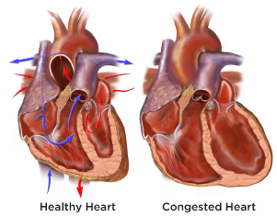 Nursing Diagnosis for CHF - Congestive Heart Failure