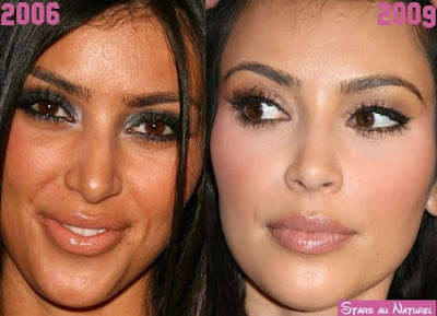 kim kardashian chirurgie