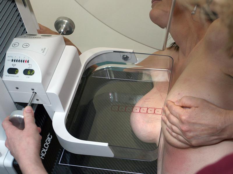 http://4.bp.blogspot.com/_PEOtjJAjqHE/TOwvuuz3mtI/AAAAAAAAATA/QDrXhwsZS8g/s1600/Mammographie_19349184originallarge-4-3-800-0-0-2535-1899.jpg