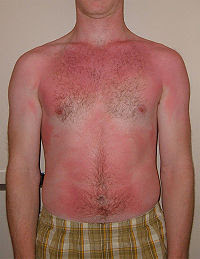 Example of a Sunburn (QuinnHK Wikipedia)