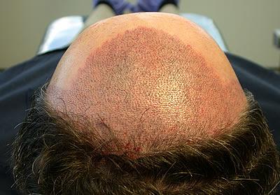 micro greffe capillaire