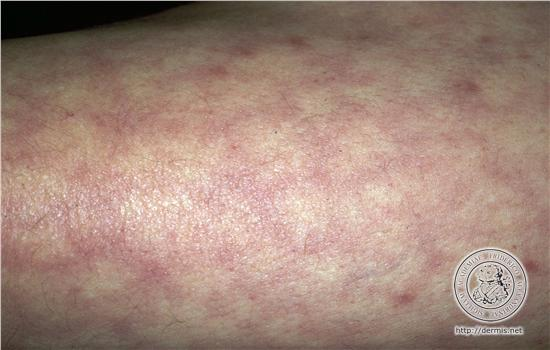 Although livedo reticularis can appear without cause, most often it is ...