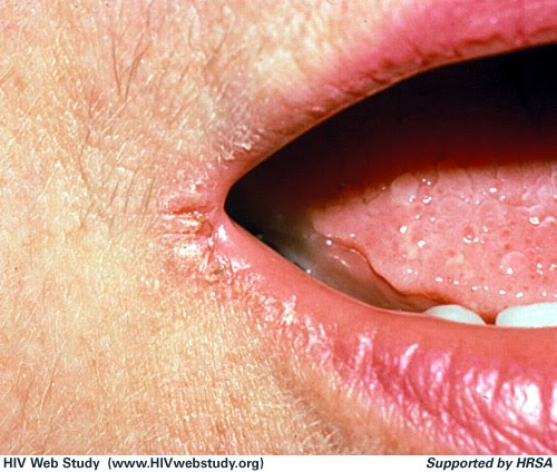 are cold sores always herpes genitalis pictures