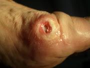 Juanete con Infección, higroma, bursitis. Espolón calcáneo. Fotos artísticas .