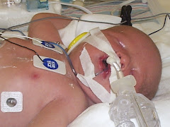 Kaden before Ecmo
