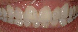 carillas dentales sobre dientes