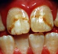 manchas fluorosis dental