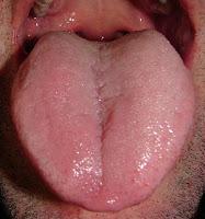 higiene de lengua