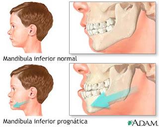 mandibula adelantada cirugia ortognatica