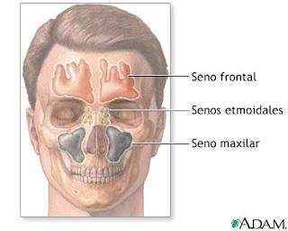 comunicacion bucosinusal por extraccion dientes