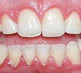 gingivitis encias sangrantes