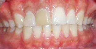 diente mas amarillo que el resto
