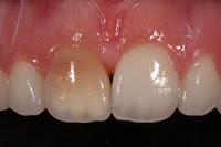 diente oscuro golpe endodoncia