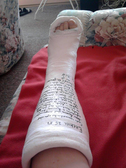 Cyber Arm Cast: Message in a toeplate cast