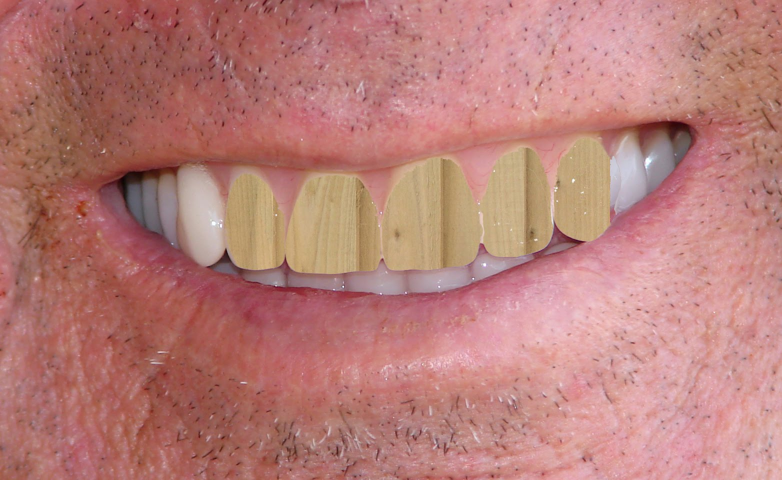 Image result for Wooden teeth images